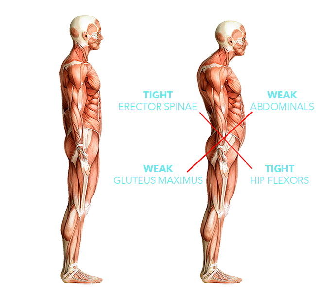 Anatomical model of muscle - on the left the model shows normal posture. On the right another model shows excessive anterior tilt with tight erector spinae and hip flexors crossed with weak abdominals and gluteus maximus