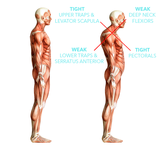 Upper body postural dysfunctions illustrated using anatomical muscle model - the left model shows normal posture, the right model shows tight upper traps and levator scapula and tight pectorals, crossed with weak deep neck flexors and lower traps and serratus anterior.